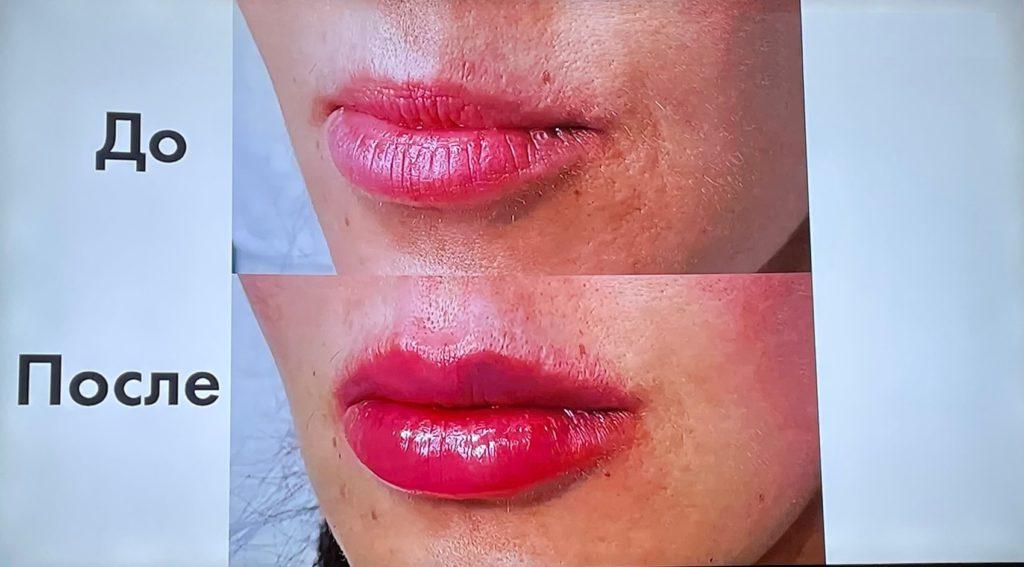 Пышные губы